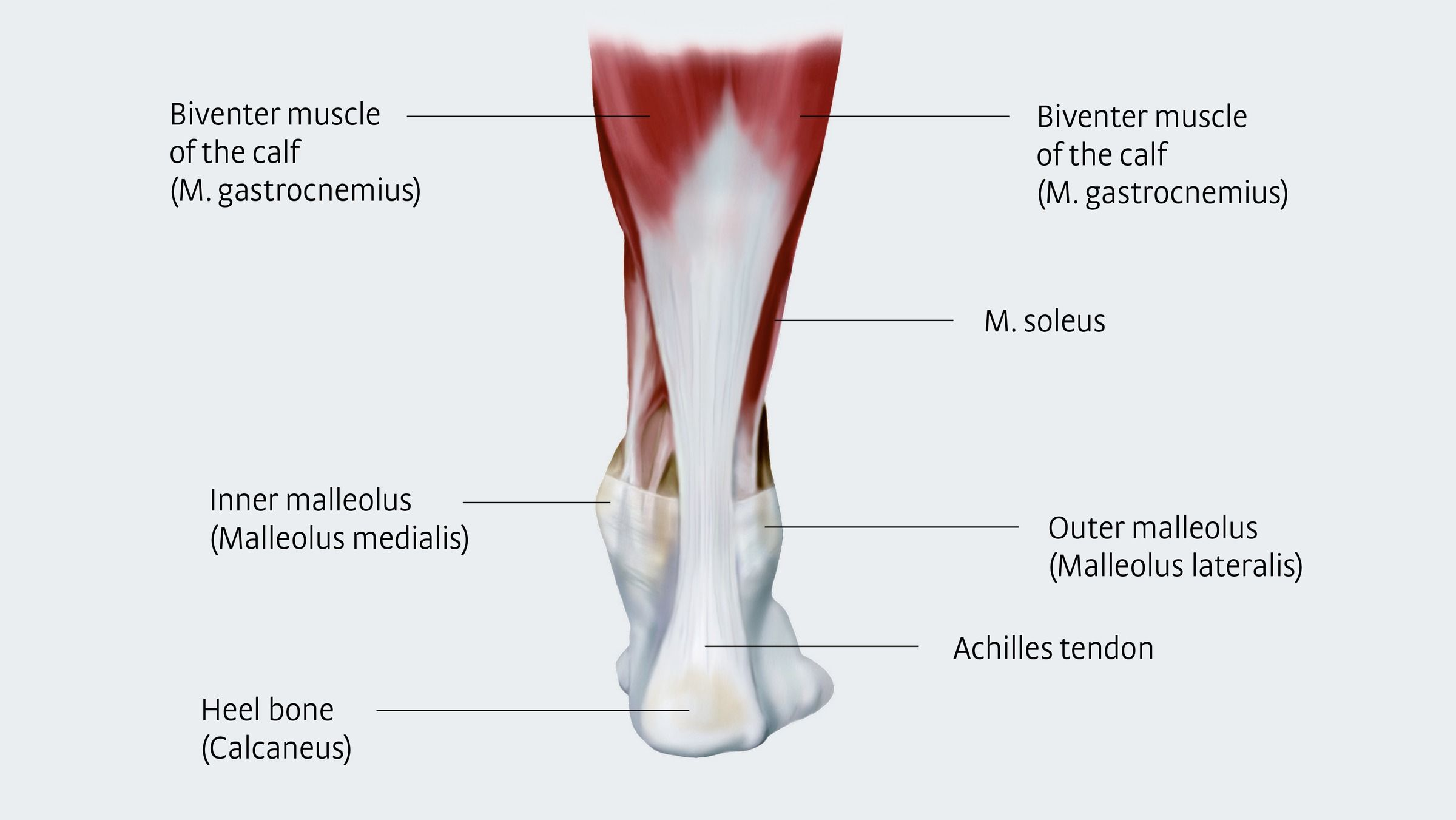 Achillodynia A Pain Syndrome Of The Achilles Tendon