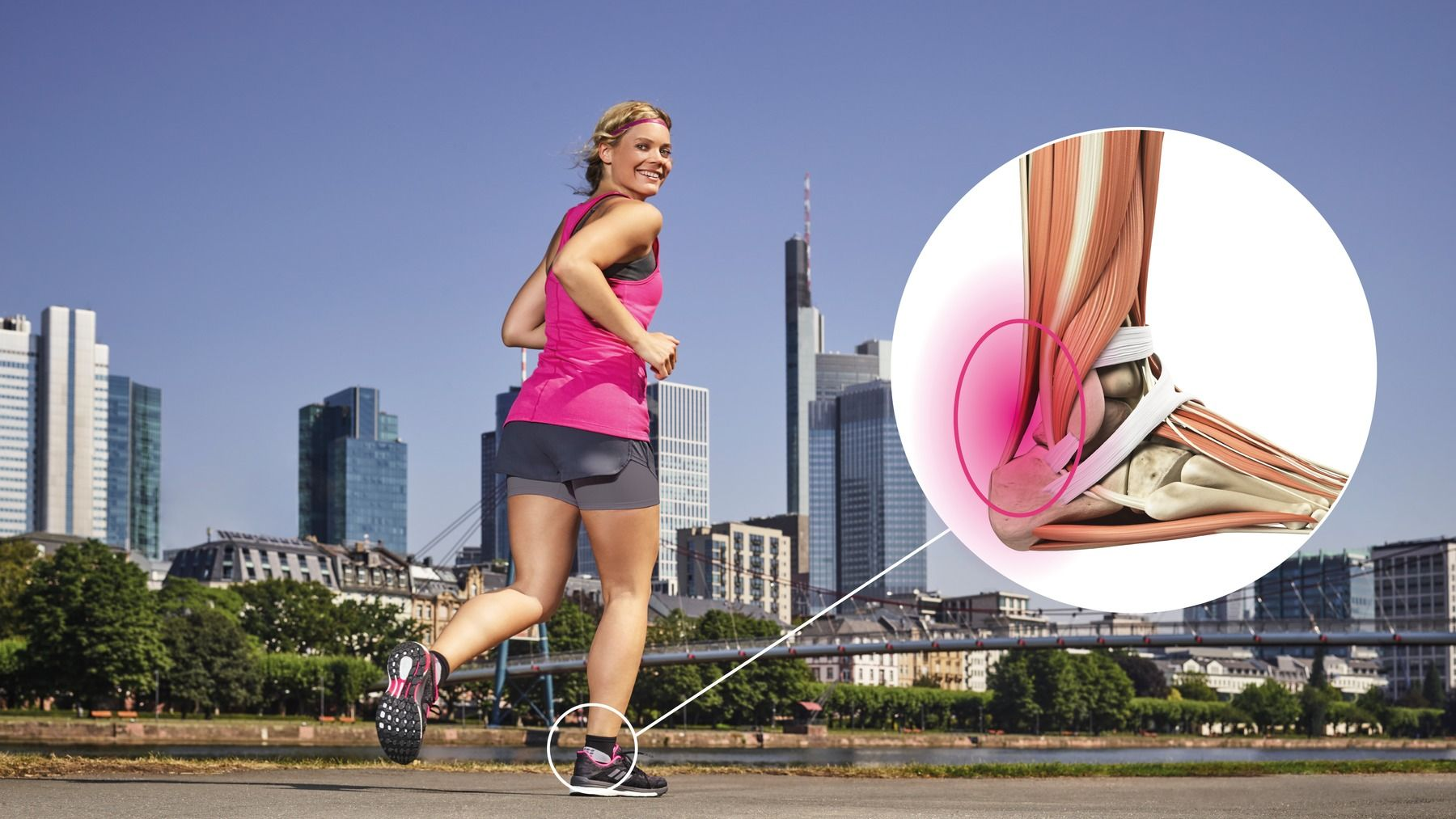 Achilles tendon - anatomy and importance