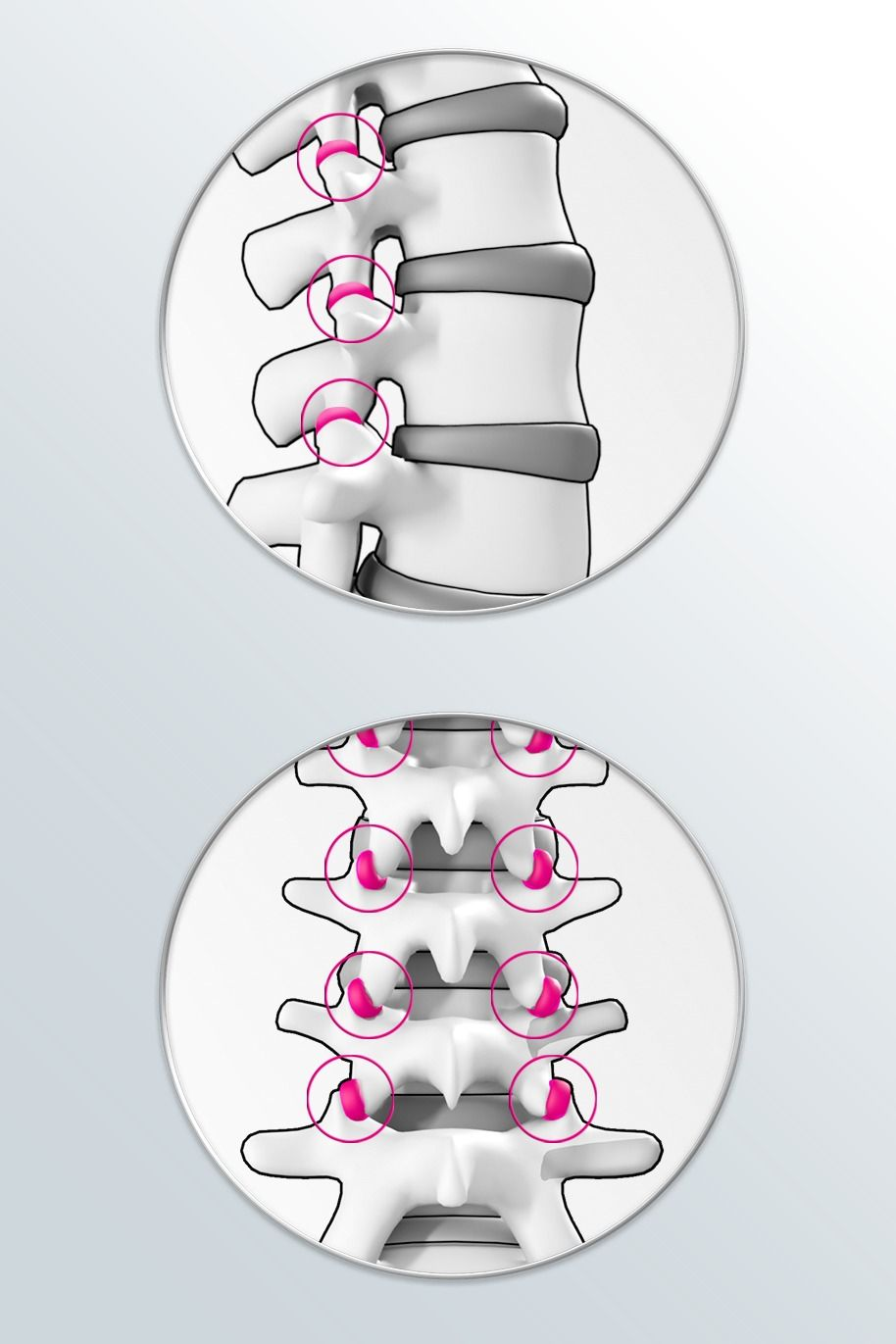 Joints between the vertebrae (facet joints)