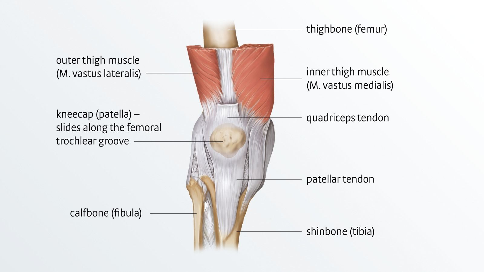 Patellar tendinopathy | Irritation of the patellar tendon